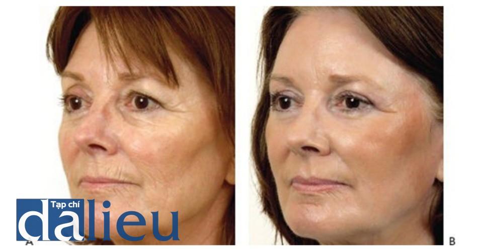 HÌNH 12 Tái tạo bề mặt da xâm lấn sâu để điều trị các nếp nhăn vùng mặt trước khi (A) và sau khi (B) 1 lần điều trị với độ sâu 120 μm sử dụng erbium laser. (với sự cho phép của BS L. Apostolakis và Sciton.)