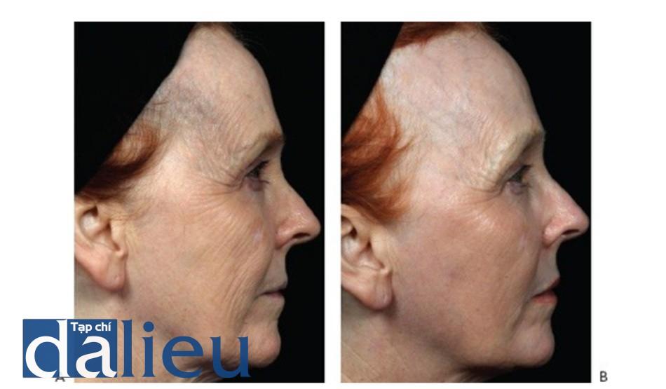 HÌNH 13 Tái tạo bề mặt da phân đoạn xâm lấn để điều trị nếp nhăn vùng mặt trước khi (A) và sau khi (B) 1 lần điều trị sử dụng laser carbon dioxide.
