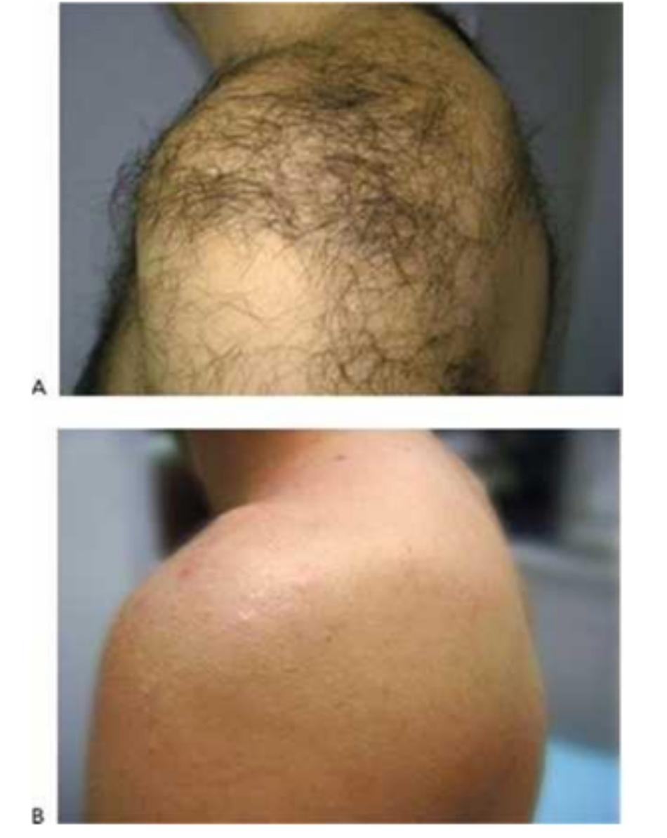 Hình 14: Lông ở vai và lưng trên trước khi (A) và sau khi (B) chuỗi điều trị triệt lông sử dụng laser 755 nm