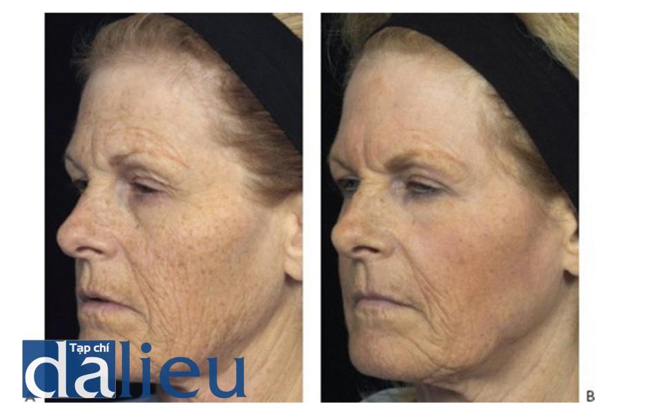 HÌNH 14 Tái tạo bề mặt da phân đoạn xâm lấn để điều trị nếp nhăn vùng mặt và màu da trước khi (A) và sau khi (B) 1 lần điều trị sử dụng laser carbon dioxide. (với sự cho phép của BS Z. Rahman và Solta.)