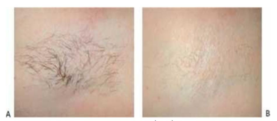 Hình 15: Lông nách trước khi (A) và sau khi (B) 4 lần điều trị triệt lông với ánh sáng xung mạnh