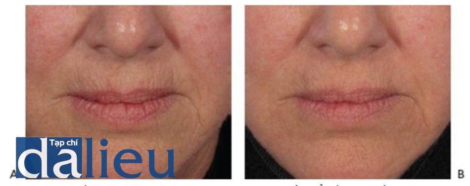 HÌNH 15 Tái tạo bề mặt da với laser phân đoạn xâm lấn để điều trị nếp nhăn xung quanh miệng trước khi (A) và sau khi (B) một lần điều trị sử dụng laser carbon dioxide. (với sự cho phép của BS G. Munavalli và Lumenis.)