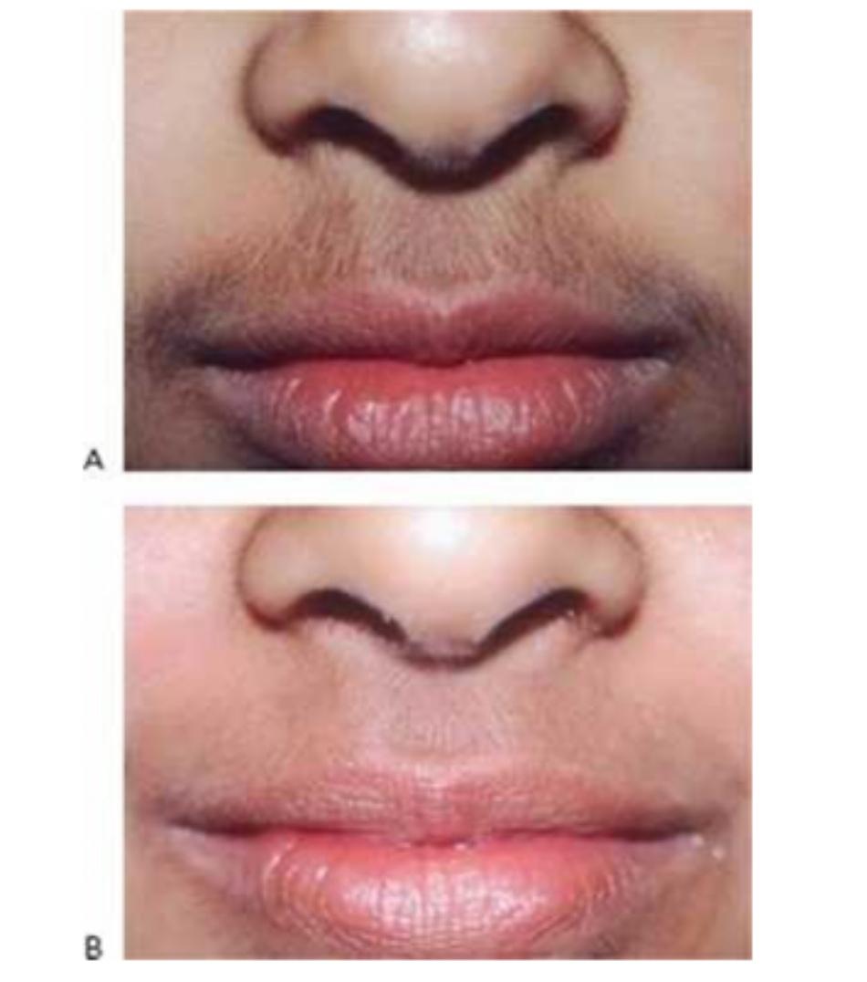 Hình 16: Lông môi trên trước khi (A) và sau khi (B) chuỗi điều trị triệt lông sử dụng laser Q-switched 1064 nm
