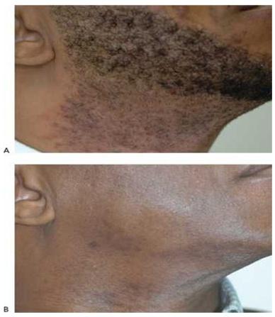 Hình 18: Giả viêm nang lông trước khi (A) và sau khi (B) 12 lần điều trị triệt lông dùng laser xung dài 1064 nm