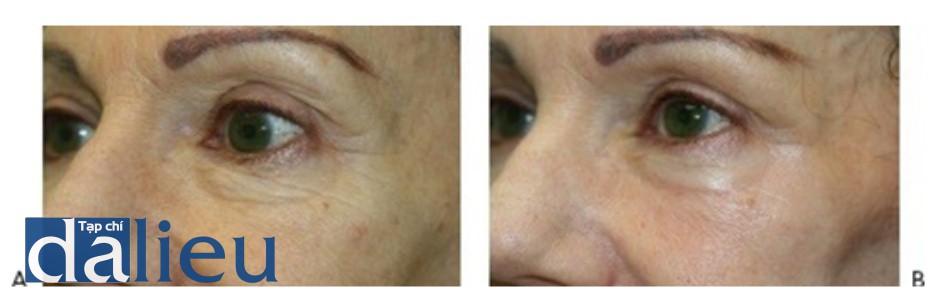 HÌNH 18 Tái tạo bề mặt da phân đoạn xâm lấn cho nếp nhăn vùng xung quanh mắt trước khi (A) và sau khi (B) một lần điều trị sử dụng erbium laser. (với sự cho phép của BS R. Small)