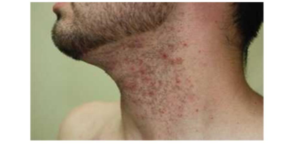Hình 19: Viêm nang lông ở cổ 2 tuần sau khi triệt lông sử dụng xung ánh sáng tăng cường (IPL)