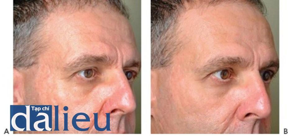 HÌNH 19 Tái tạo bề mặt da phân đoạn xâm lấn cho các sẹo mụn trứng ca trước khi (A) và sau khi (B) 5 lần điều trị sử dụng erbium laser. (với sự cho phép của BS K. Remington và Sciton.)