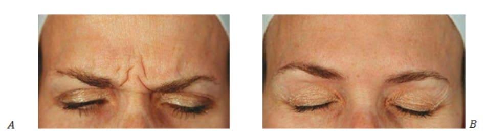 Hình 1. Nếp nhăn cau mày trước (A) và sau 1 tháng (B) điều trị botulinum toxin cho phức hợp cơ gian mày, ảnh chụp ở trạng thái cơ co.