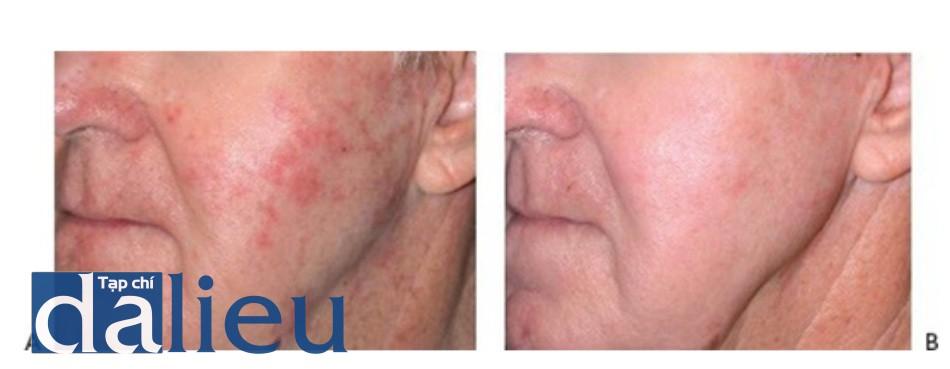 HÌNH 20 Tái tạo bề mặt da phân đoạn xâm lấn điều trị dày sừng do quang hóa trước khi (A)và sau khi (B) 2 lần điều trị sử dụng erbium laser. (với sự điều trị của BS R. Koch và Sciton.)