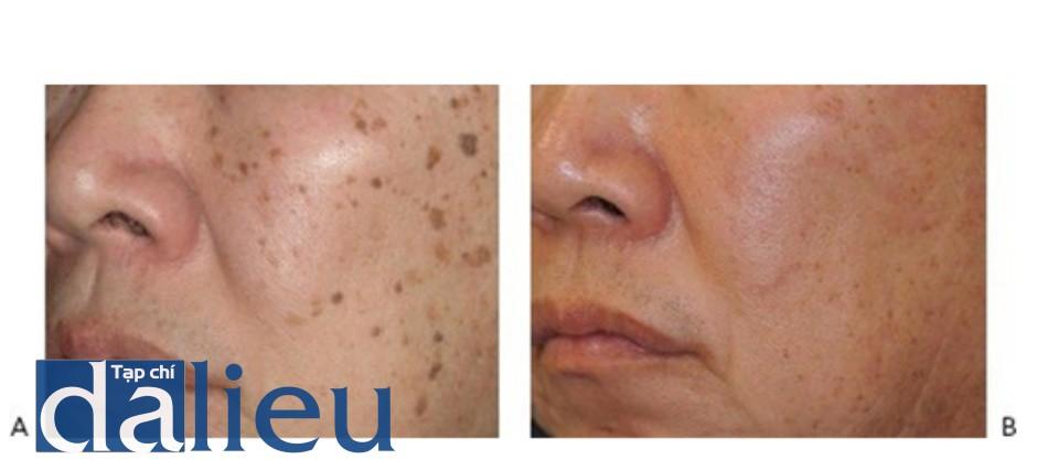 HÌNH 22 Tái tạo bề mặt da xâm lấn điều trị dày sừng bã đậu trước khi (A) và sau khi (B)1 lần điều trị sử dụng erbium laser với đầu điều trị nhỏ. (với sự cho phép của BS K. Khatri và Cynosure/ConBio.)