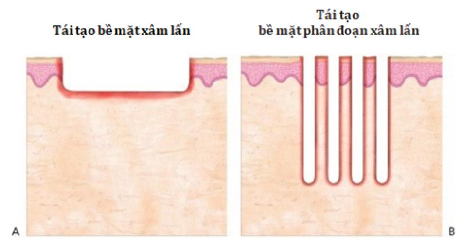 Hình 2: Các mẫu tổn thương của laser xâm lấn: không phân đoạn (A) và phân đoạn (B)