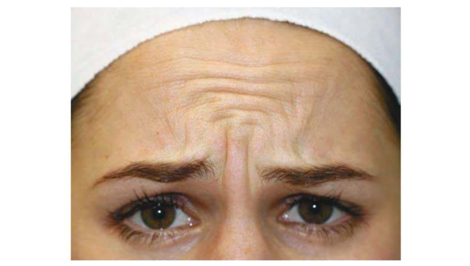 Hình 3. Cơ trán và phức hợp cơ gian mày co đồng thời khi cau mày