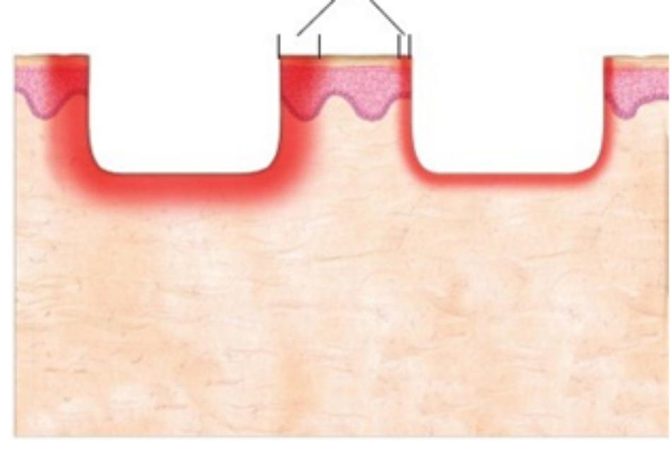 HÌNH 3 Carbon dioxide (CO2) và erbium: các đặc tính của yttrium aluminum garnet (Er:YAG)