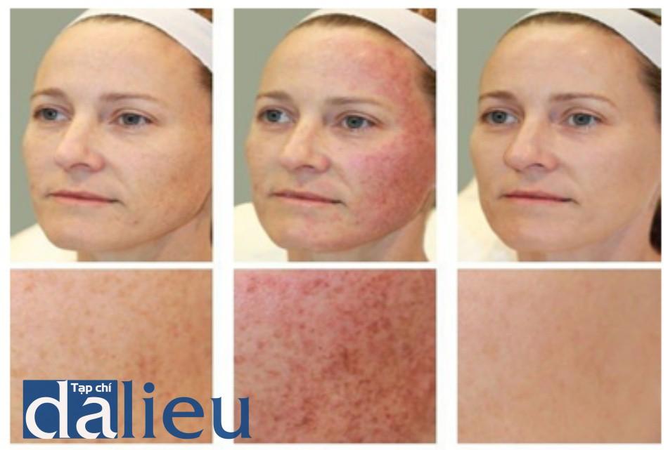 HÌNH 4 đồi mồi và đường lằn thay đổi sắc tố trước khi (A), ngay sau khi điều trị cho thấy các đáp ứng lâm sàng và nhìn cận cảnh tổn thương sắc tố tối dần đi, sự phân định ranh giới, và ban đỏ xung quanh tổn thương (B), và 1 tháng sau khi điều trị (C), sử dụng ánh sáng xung mạnh