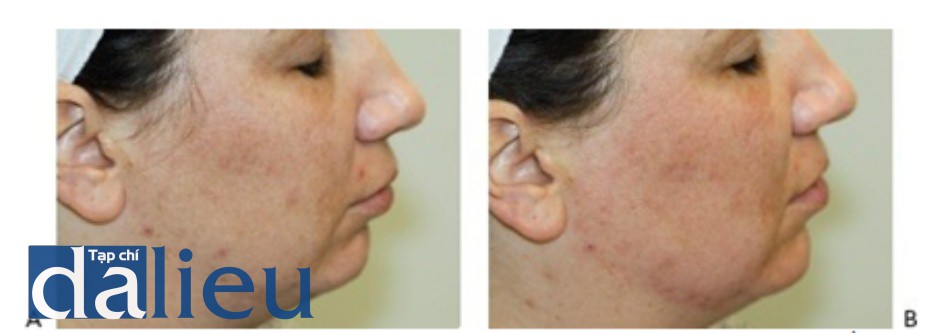 Hình 4: Đáp ứng lâm sàng của ban đỏ nhẹ trước khi (A) và ngay sau khi (B) điều trị với tái tạo bề mặt da không xâm lấn sử dụng đầu Q-switched 1064 nm laser