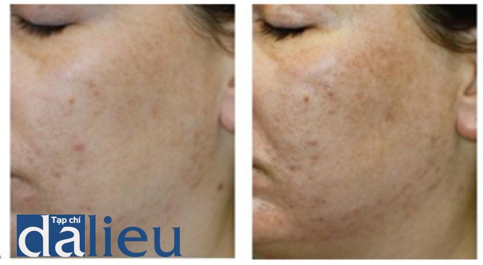 Hình 5: Đáp ứng lâm sàng của tăng sắc tố sẫm màu trước khi (A) và ngay sau khi (B) điều trị giảm nếp nhăn không xâm lấn sử dụng Q-switched 1064 nm laser