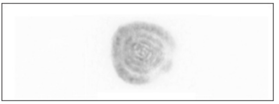 Hình 6: Các vòng đồng tâm được nhìn thấy với xung máy laser Q-switched 1064 nm xóa xăm trên nền giấy trắng đại diện cho sự sắp xếp hình gương bên trong tốt