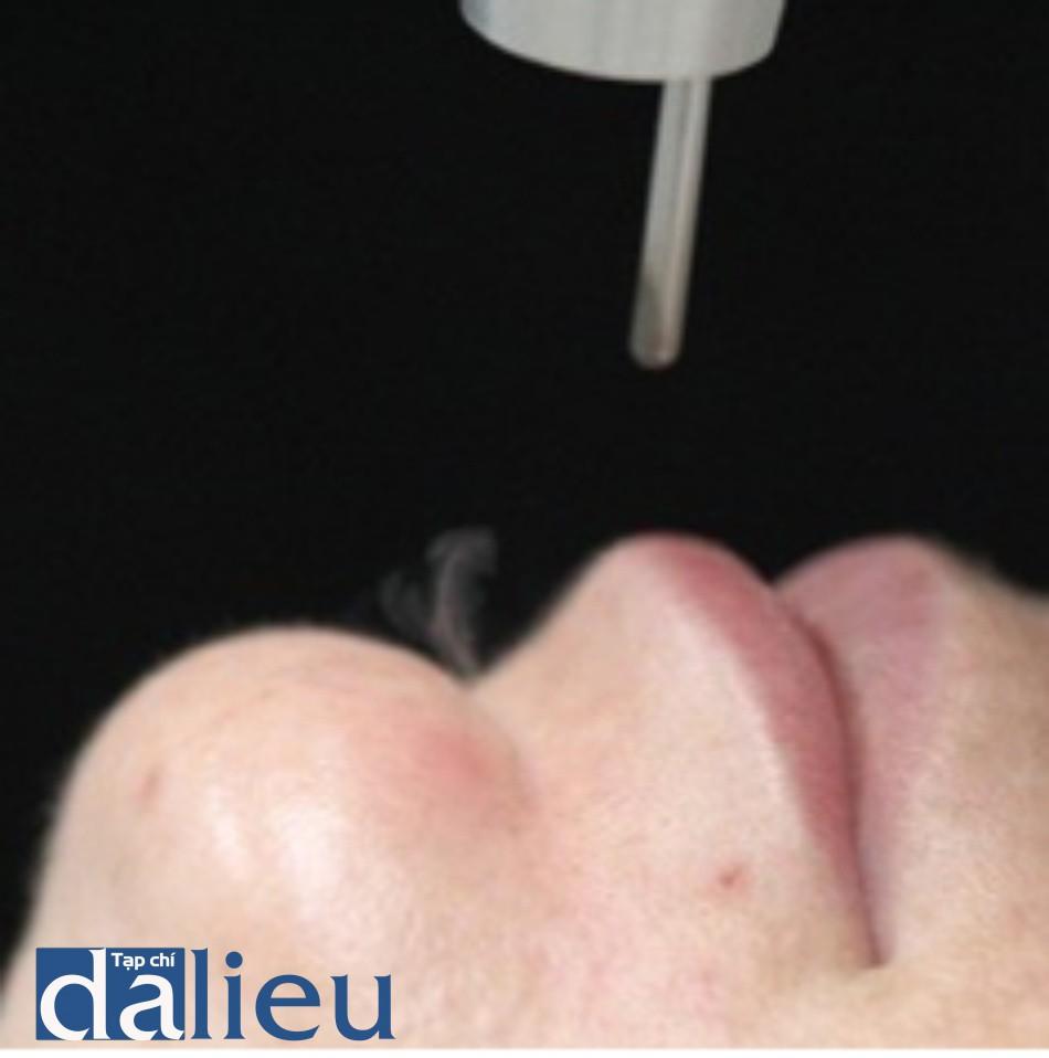 Hình 6: Đáp ứng lâm sàng của sự bay hơi bã nhờn ở cằm trong khi điều trị tái tạo bề mặt da không xâm lấn sử dụng Q-switched 1064 nm laser