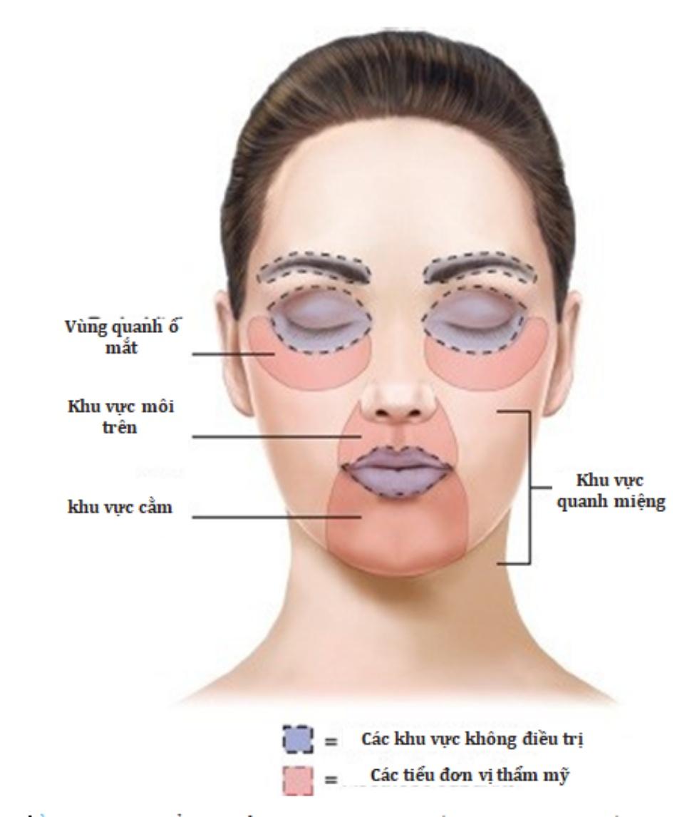 HÌNH 6 Các vùng thẩm mỹ nhỏ trên mặt thường được điều trị với laser tái tạo bề mặt da phân đoạn không xâm lấn.