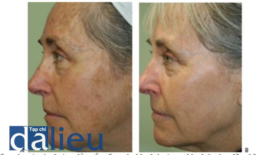 Hình 7: Đốm nâu và các đường lằn sắc tố trước khi (A) và sau khi (B) với 5 lần điều trị sử dụng IPL