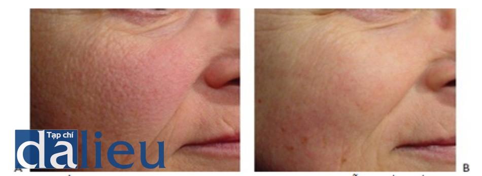 HÌNH 7 Các nếp nhăn trên mặt trước khi (A) và sau khi (B) chuỗi sáu lần điều trị sử dụng xung dài 1064 nm laser. (với sụ cho phép của BS K. Smith và Cutera.)