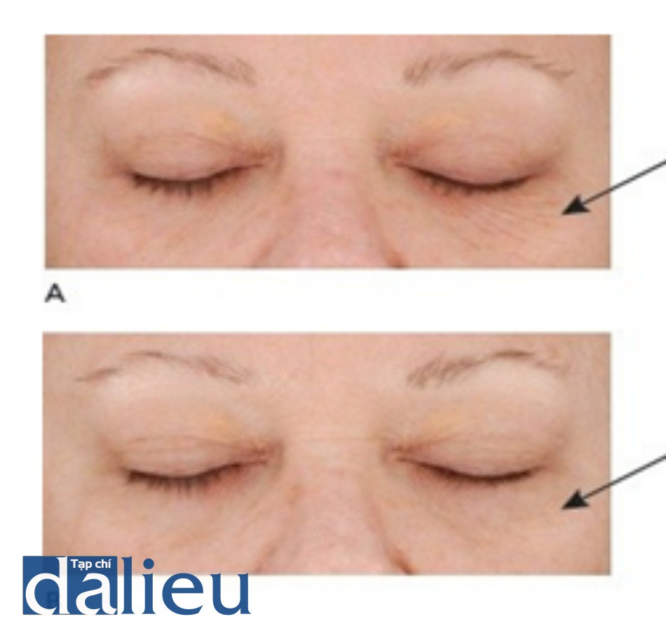 HÌNH 8 Các nếp nhăn dưới ổ mắt trước khi (A) và sau khi (B) chuỗi điều trị sử dụng Q-switched 1064 nm YAG laser. (với sự cho phép của BS D. Goldberg và Cynosure/ConBio.)