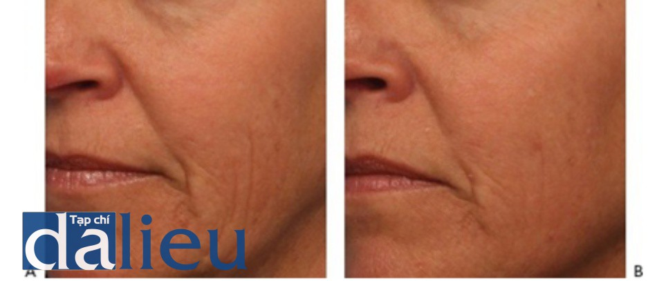 HÌNH 9 Các nếp nhăn vùng má trước khi (A) và sau khi (B) điều trị tái tạo bề mặt da phân đoạn không xâm lấn sử dụng 1565 nm laser.