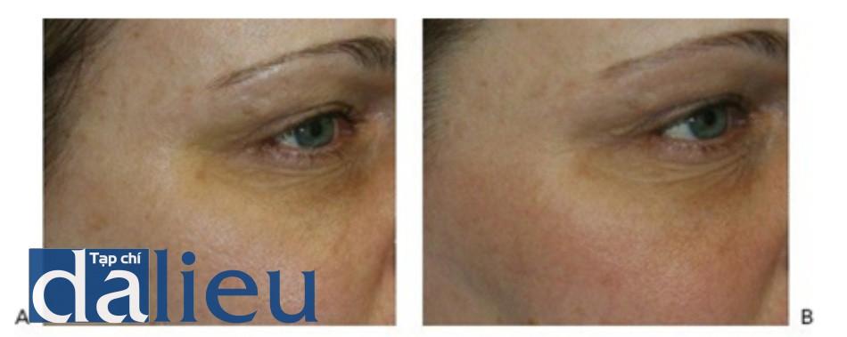 Hình 10: Đốm nâu và vòng thâm đen dưới mắt trước khi (A)và sau khi (B) 2 lần điều trị sử dụng Q-switched 532 nm laser