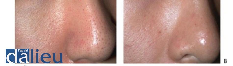 HÌNH 12 Lỗ chân lông nở rộng trước khi (A) và sau khi (B) 3 lần điều trị sử dụng Q-switched 1064 nm laser. (với sự cho phép của BS G.S. Lee và Lutronic.)