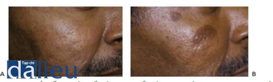 HÌNH 13 Tăng sắc tố sau viêm đối với loại da tối màu theo phân loại Fitzpatrick trước khi (A) và sau khi (B) một chuỗi điều trị sử dụng laser Q-switched 1064 nm.