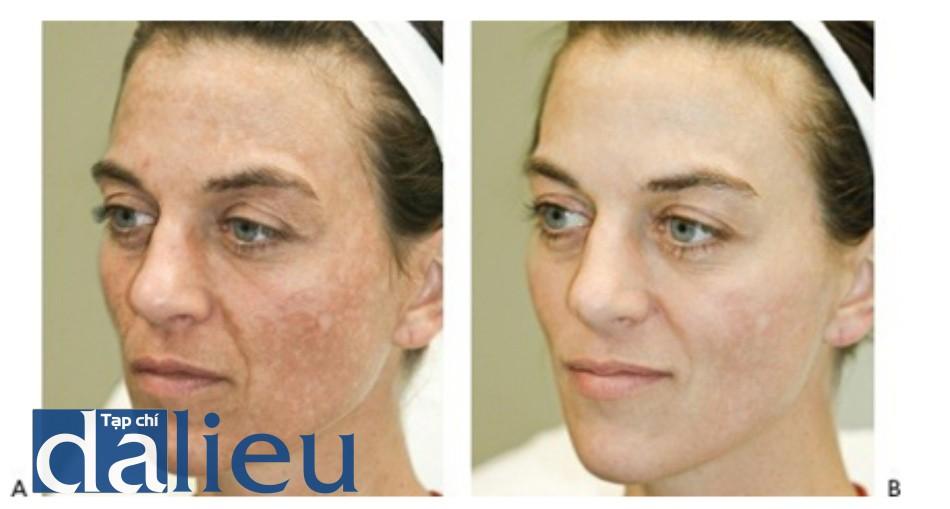 Hình 14: Nám trước khi (A) và sau khi (B) một chuỗi điều trị sử dụng laser Q-switched 1064nm