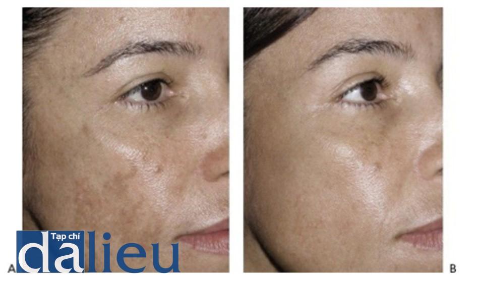 Hình 15: Nám trước khi (A) và sau khi (B) 4 lần điều trị sử dụng laser phân đoạn 1550 nm