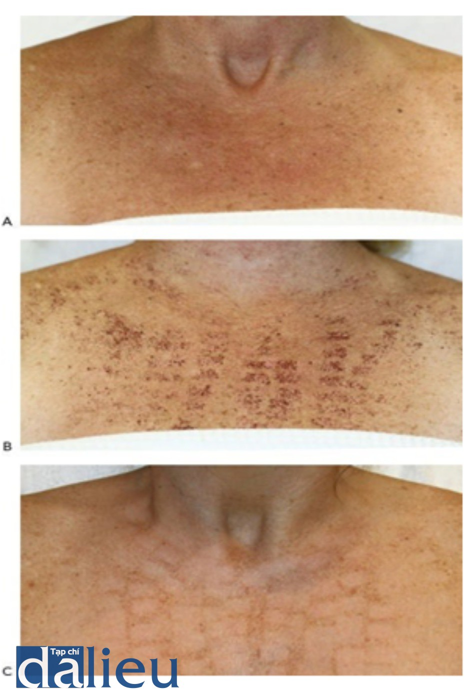 HÌNH 17 Màu da đồng do quang hóa da vùng ngực với nốt ruồi ở bệnh nhân có loại da sáng theo phân loại da Fitzpatrick trước khi (A), 5 ngày sau khi hình thành vỏ (B), và 1 tháng sau khi hình thành sọc (C), 1 lần điều trị với IPL.