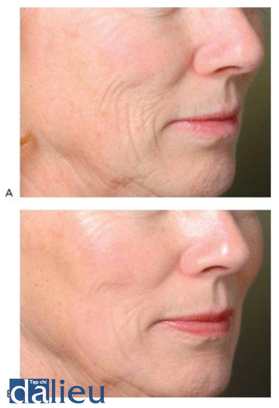 HÌNH 17 Tái tạo bề mặt da phân đoạn xâm lấn để điều trị nếp nhăn vùng mặt trước khi (A) và sau khi (B) một lần điều trị sử dụng erbium laser. (với sự cho phép của BS K. Remington và Sciton.)