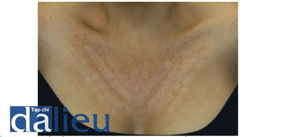 Hình 18: Giảm sắc tố vùng ngực ở bệnh nhân có loại da tối màu theo phân loại Fitpatrick 3 tháng sau khi 1 lần điều trị với IPL
