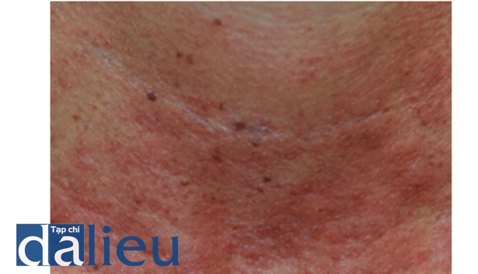 HÌNH 5 Đáp ứng lâm sàng của việc làm đen tổn thường và ban đỏ nền ngay sau khi điều trị với ánh sáng xung mạnh.