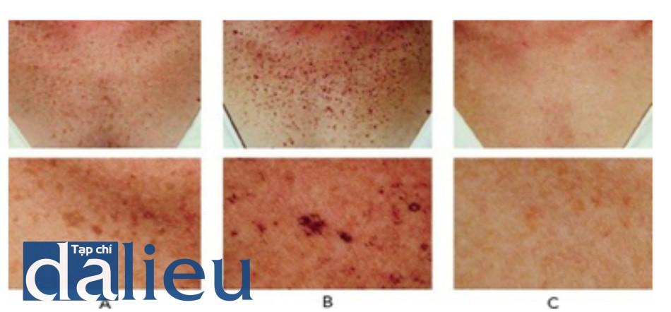 HÌNH 6 Các nốt ruồi và tàn nhang ở ngực khi nhìn gần trước khi (A), một tuần sau khi điều trị cho thấy các tổn thương sắc tố tối đi do sự hình thành các lớp vỏ nhỏ (B), và hai tuần sau điều trị (C), sử dụng ánh sáng xung mạnh IPL.