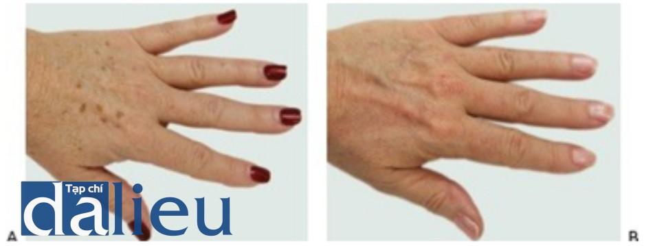 Hình 8: Đốm nâu bàn tay trước khi (A) và sau khi (B) một chuỗi điều trị IPL