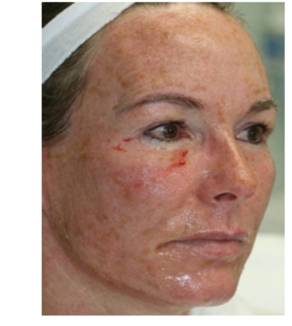 HÌNH 8 Các đáp ứng lâm sàng của tái tạo bề mặt da phân đoạn xâm lấn của điểm chảy máu xác định và hồng ban. (với sự cho phép của BS R. Small)