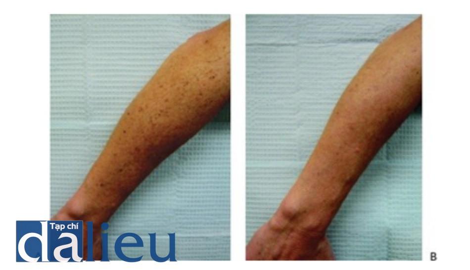 Hình 9: Đốm nâu cánh tay và đường lằn sắc tố trước khi (A) và sau khi (B)sau 1 lần điều trị bằng IPL