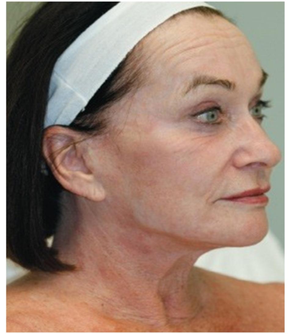 HÌNH 23 Giảm sắc tố 20 năm sau khi tái tạo bề mặt da xâm lấn sâu sử dụng laser carbon dioxide. (với sự cho phép của BS R. Small)