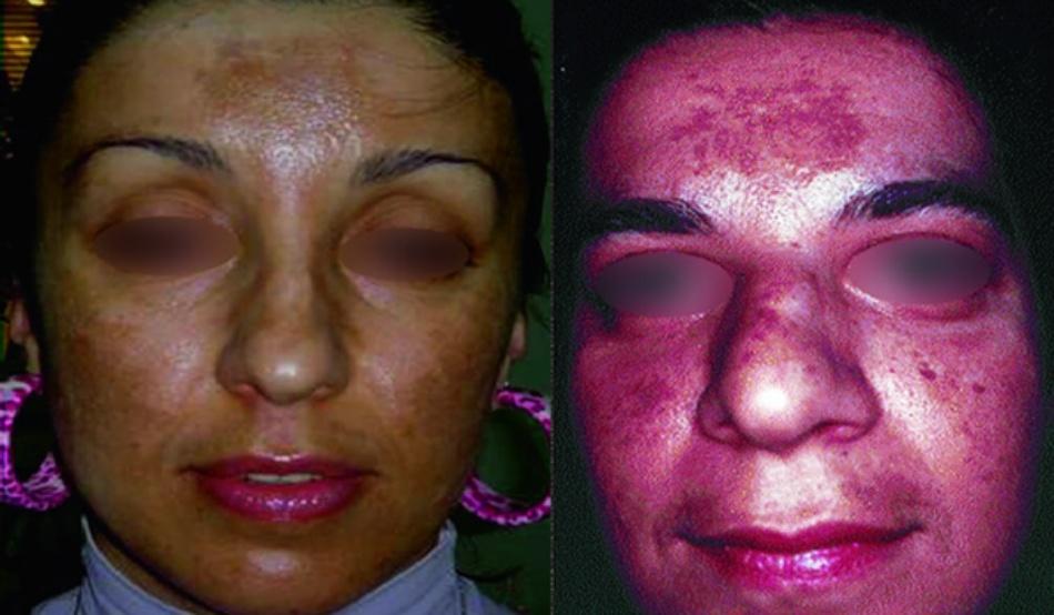 Hình 18.1 Nám mặt ở người lớn (a) bệnh nhân nữ (b) bệnh nhân nam