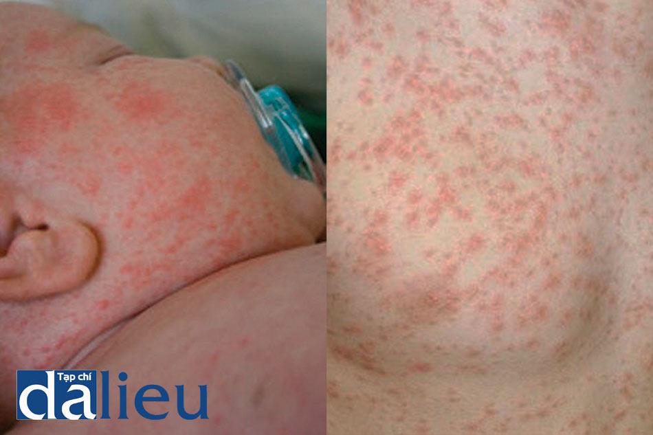 Triệu chứng lâm sàng của bệnh Rubella