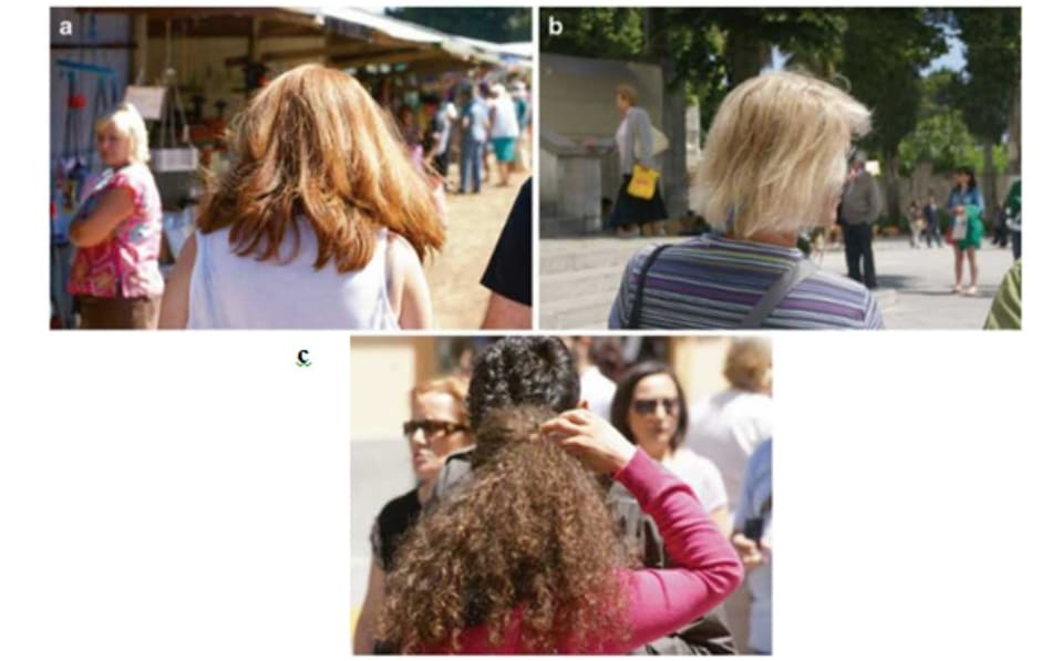 Fig. 7.1 (a-c) Disruption of the normal structure and physiology of the hair shafts results in dry, weak, and unmanage¬able heads of hair lacking shine