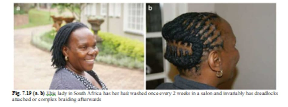 Fig. 7.19 (a. b) This lady in South Africa has her haứ washed once every 2 weeks in a salon and invariably has dread¬locks attached or complex braiding afterwards
