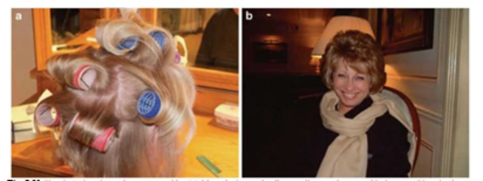 Fig. 7.31 Fine haữ showing volume created by (a) blow drying and rollers, styling products, and hairspray. Time is also a requirement in order to create (b) a day-long style