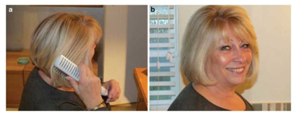 Fig. 7.44 (a) Smooth hair with wide brush and use (optional) hairspray for (b) day-long control
