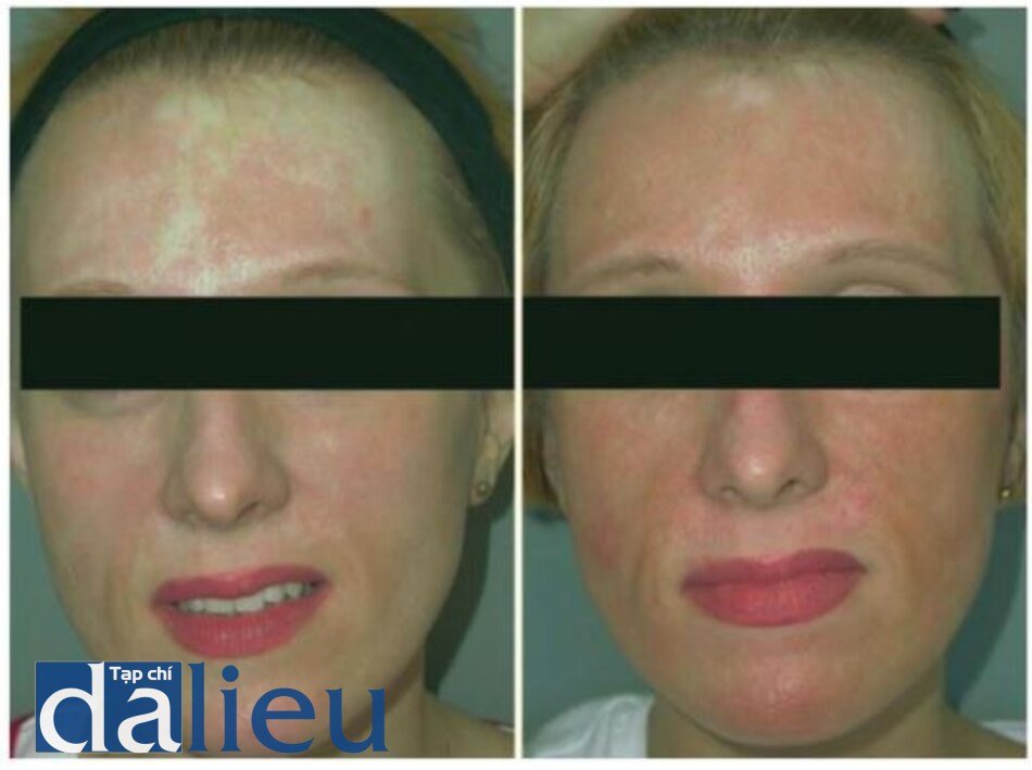 Fig. 1.8. Before (left) and 5 months after (right) er- popigmentation. Most of the hypopigmentation is re- bium laser resurfacing and application of autologous versed epidermal cell suspension (ReCell) for iatrogenic hy-