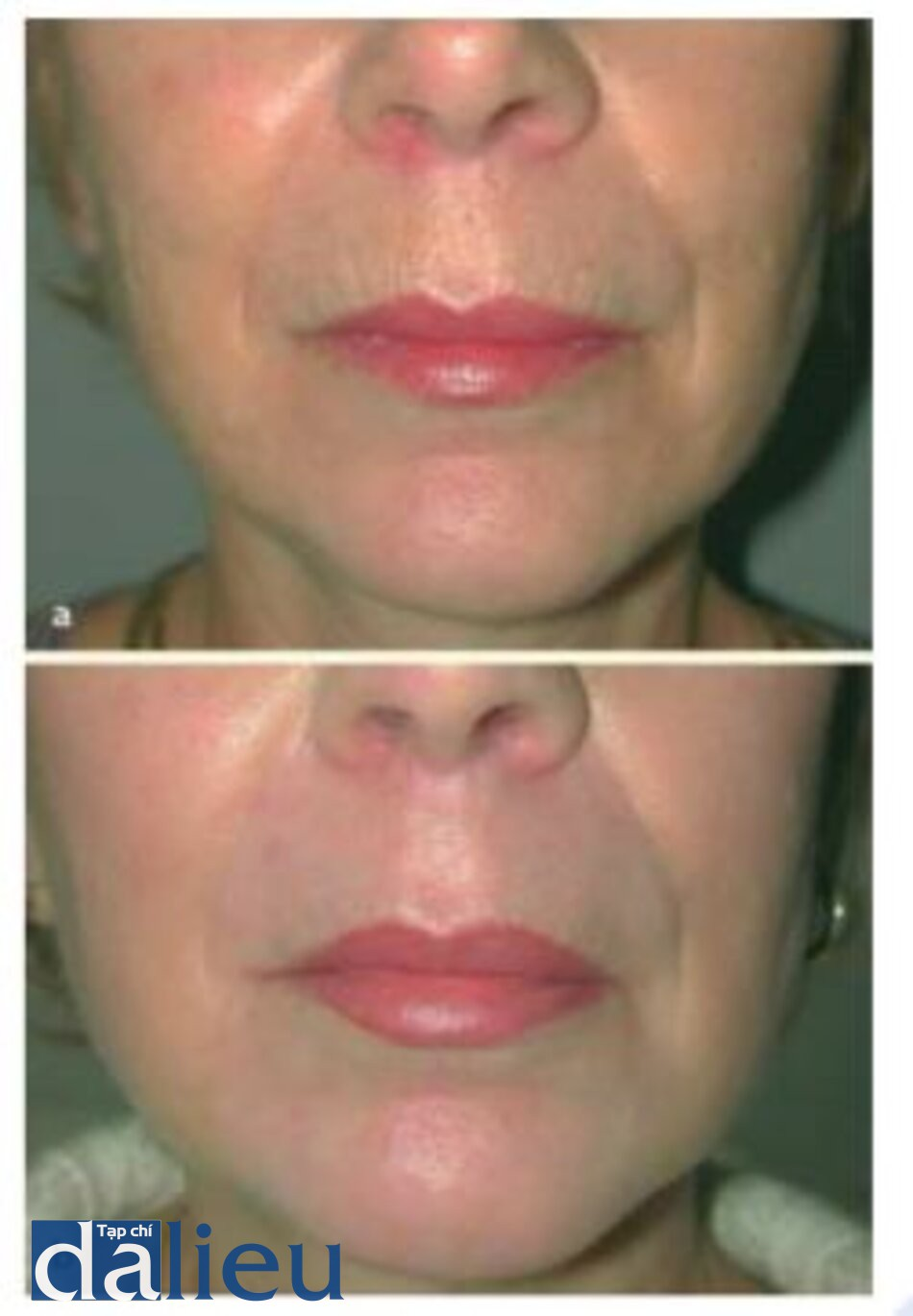 Fig. 1.9. a Before and b 3 months after erbium laser resurfacing to the upper lip for rhytides