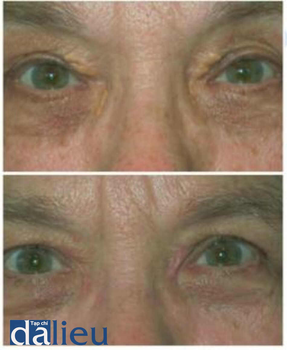 Fig. 1.13. Patient with xanthelasma before (top) and 3 months after (bottom) erbium laser